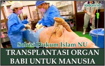 Transplantasi Organ Babi untuk Manusia